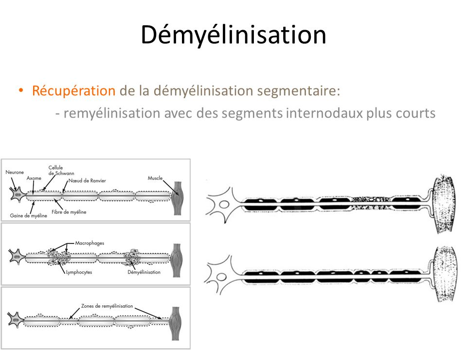 Démyélinisation Récupération de la démyélinisation segmentaire:
