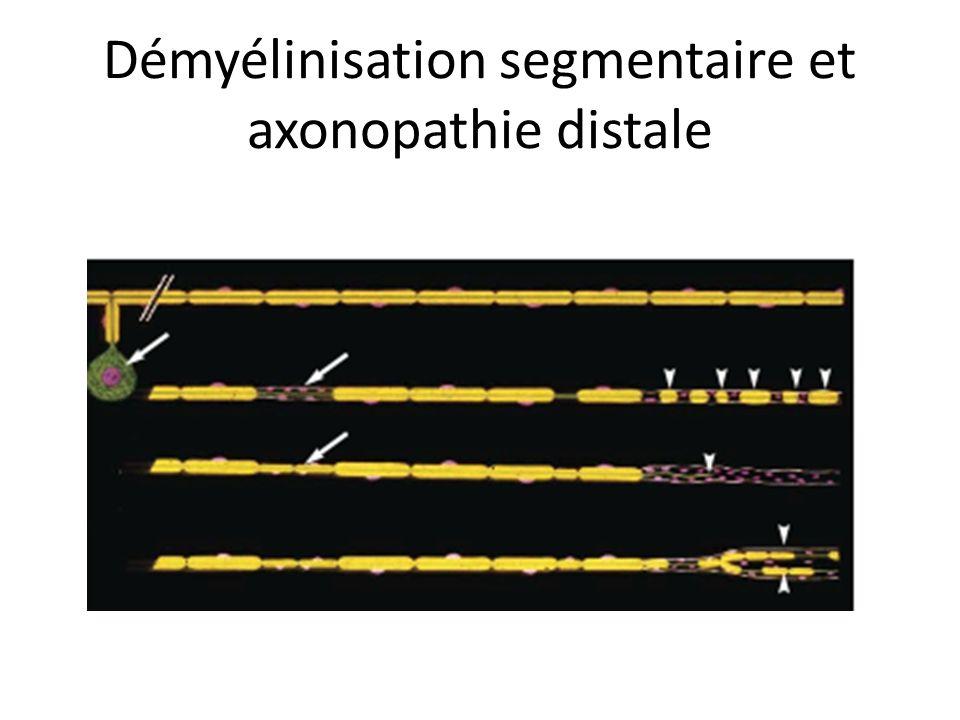 Démyélinisation segmentaire et axonopathie distale