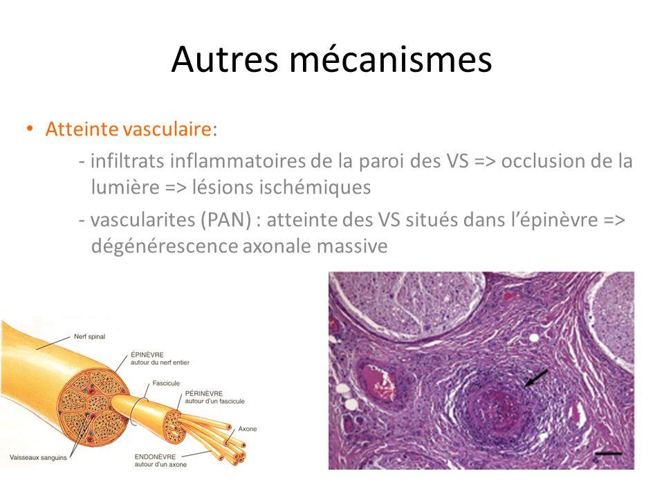 Autres mécanismes Atteinte vasculaire: