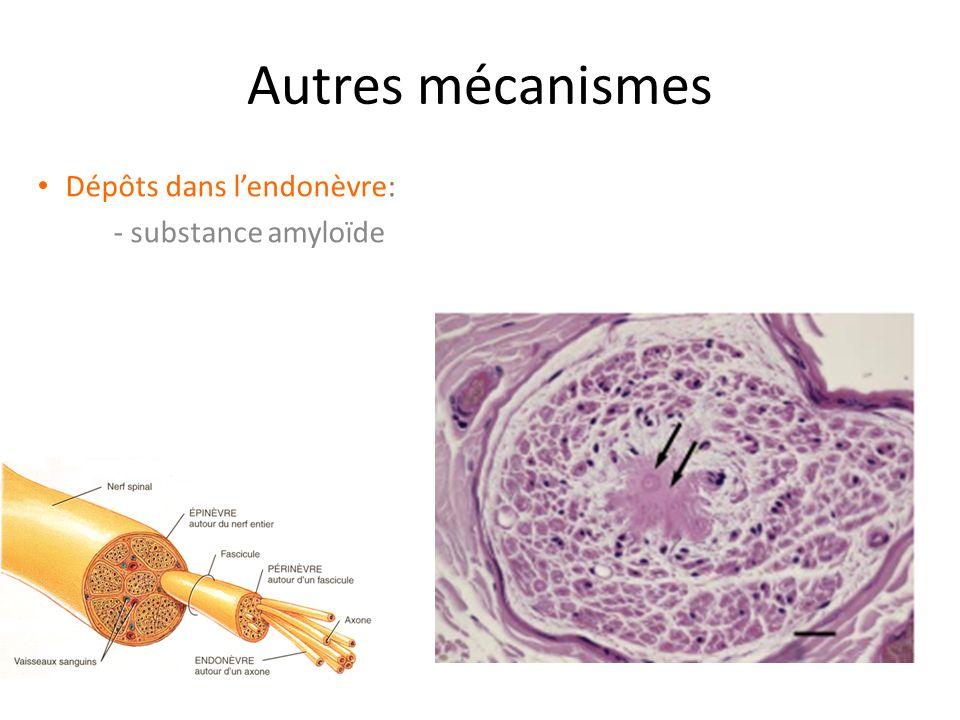 Dépôts dans l'endonèvre: - substance amyloïde