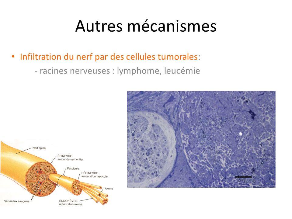 Autres mécanismes Infiltration du nerf par des cellules tumorales: