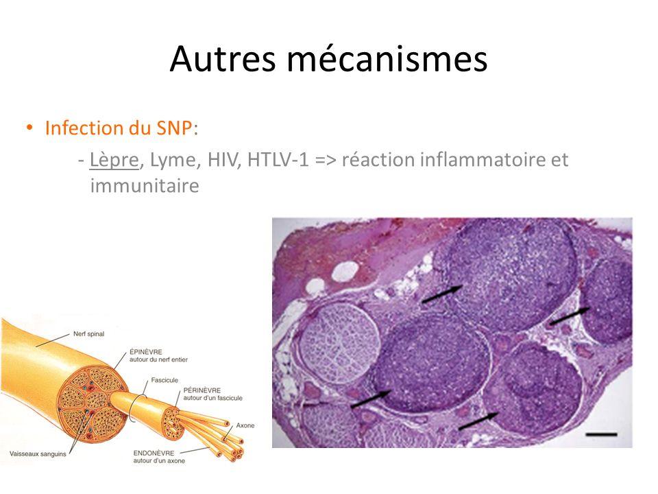 Autres mécanismes Infection du SNP: