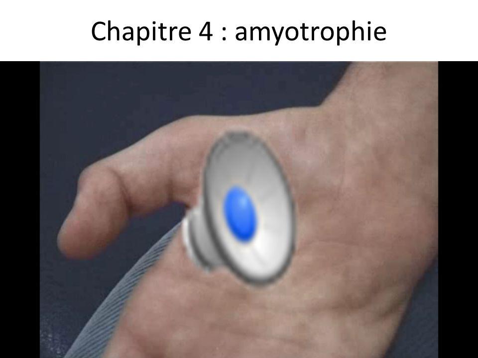 Chapitre 4 : amyotrophie