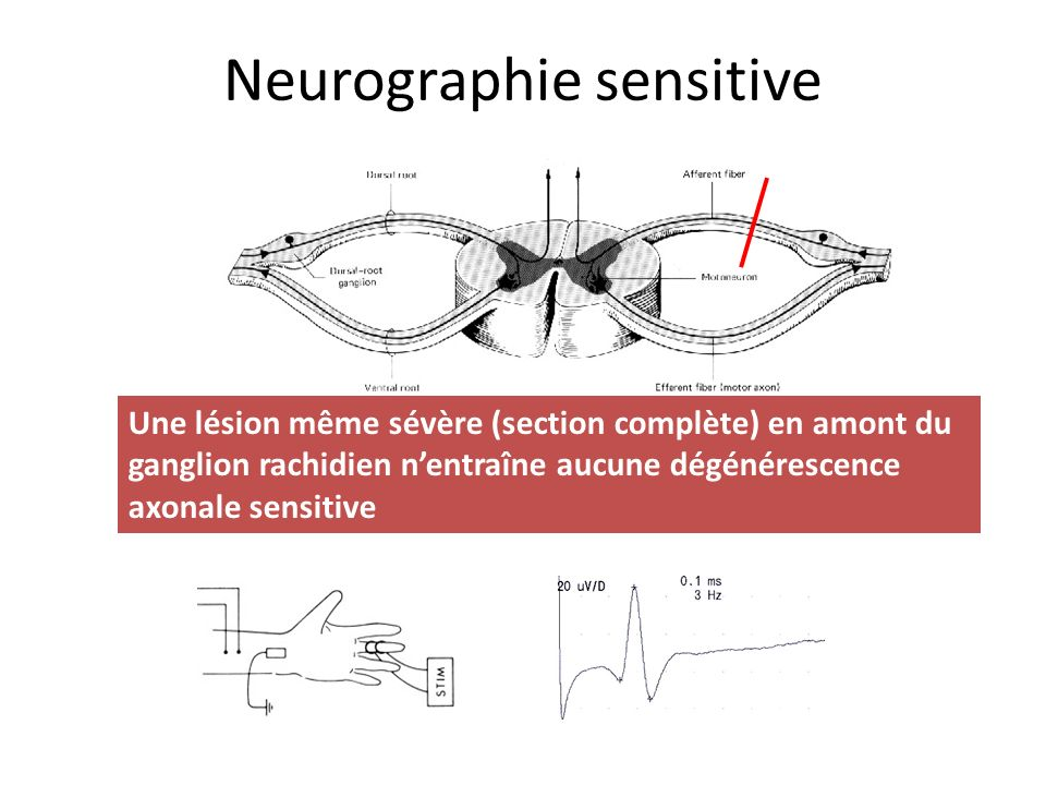 Neurographie sensitive