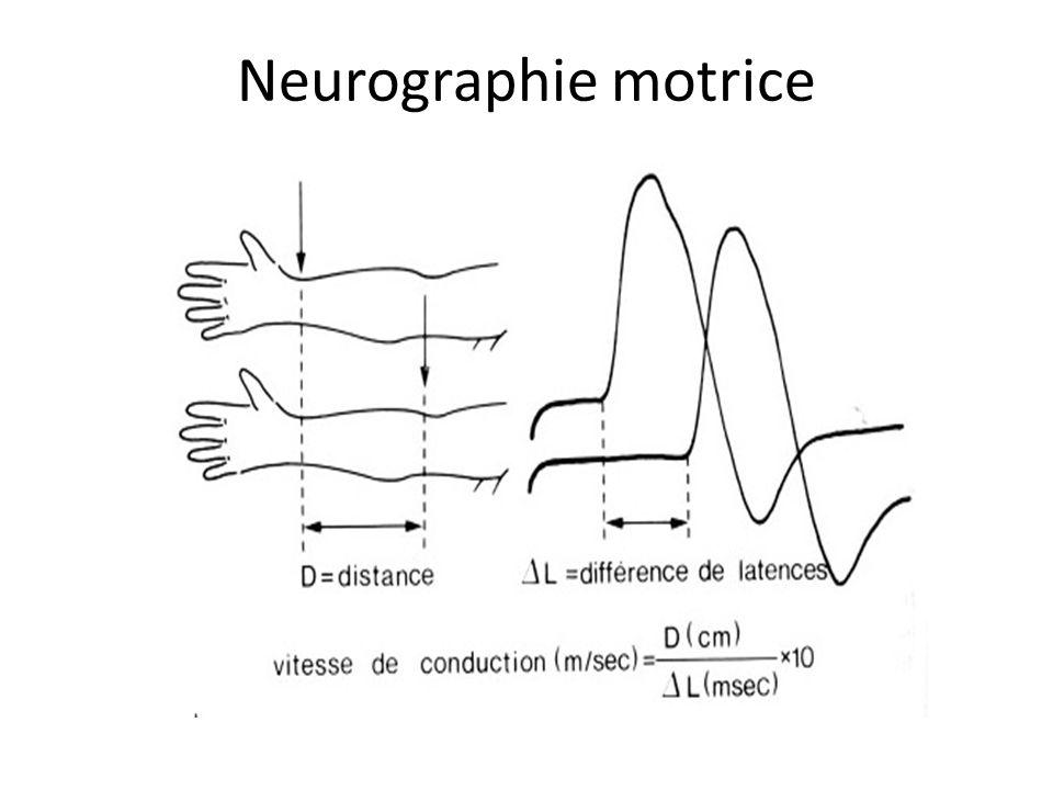 Neurographie motrice