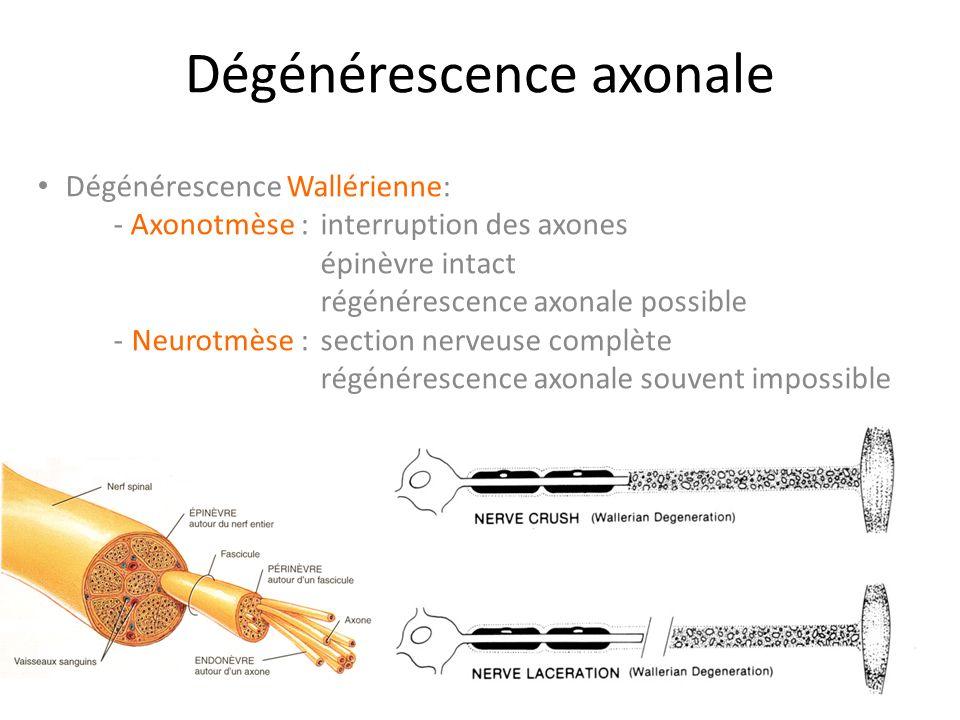 Dégénérescence axonale