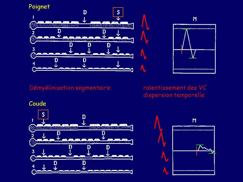 Poignet Coude. Démyélinisation segmentaire: ralentissement des VC dispersion temporelle.