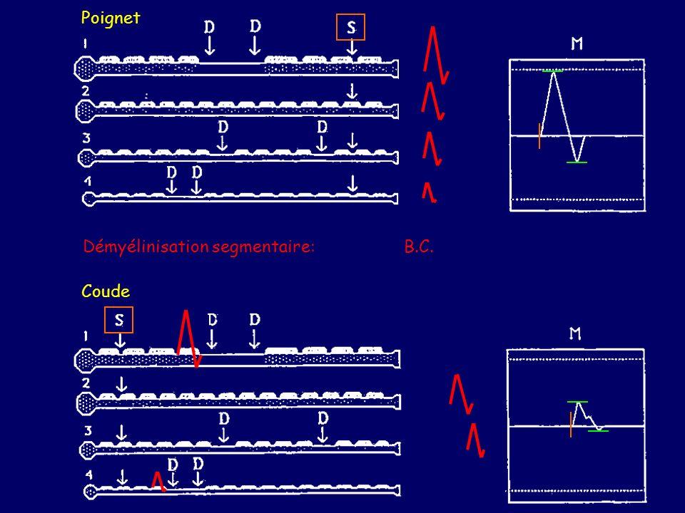 Poignet Coude Démyélinisation segmentaire: B.C.