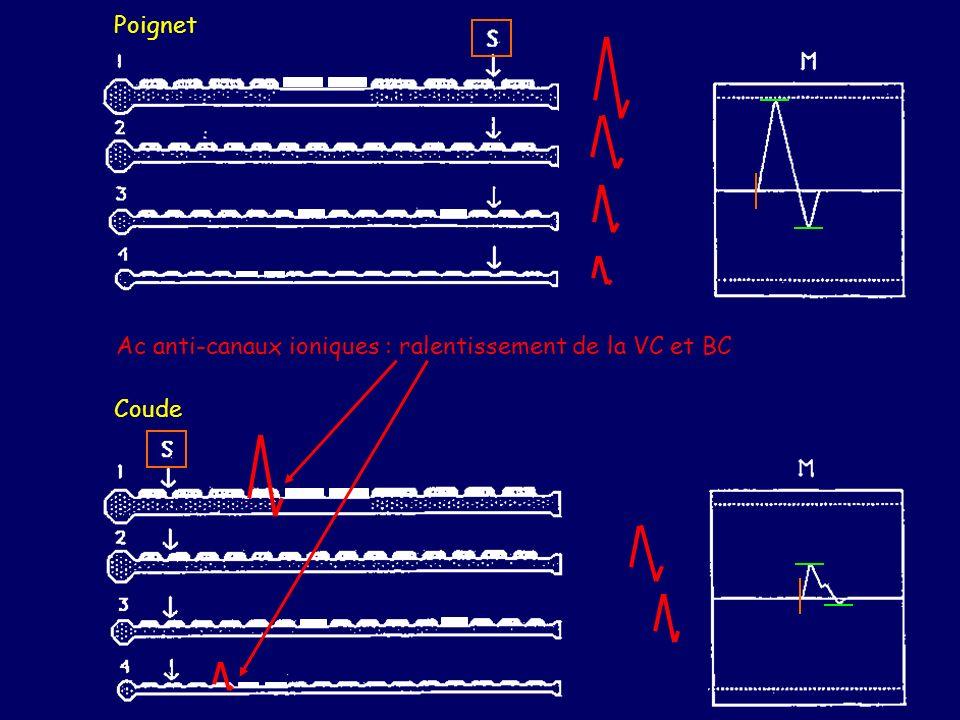 Poignet Coude Ac anti-canaux ioniques : ralentissement de la VC et BC