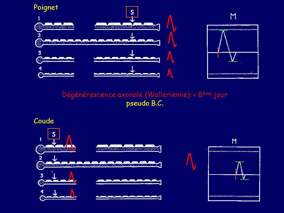 Dégénérescence axonale (Wallerienne): < 8ème jour pseudo B.C.