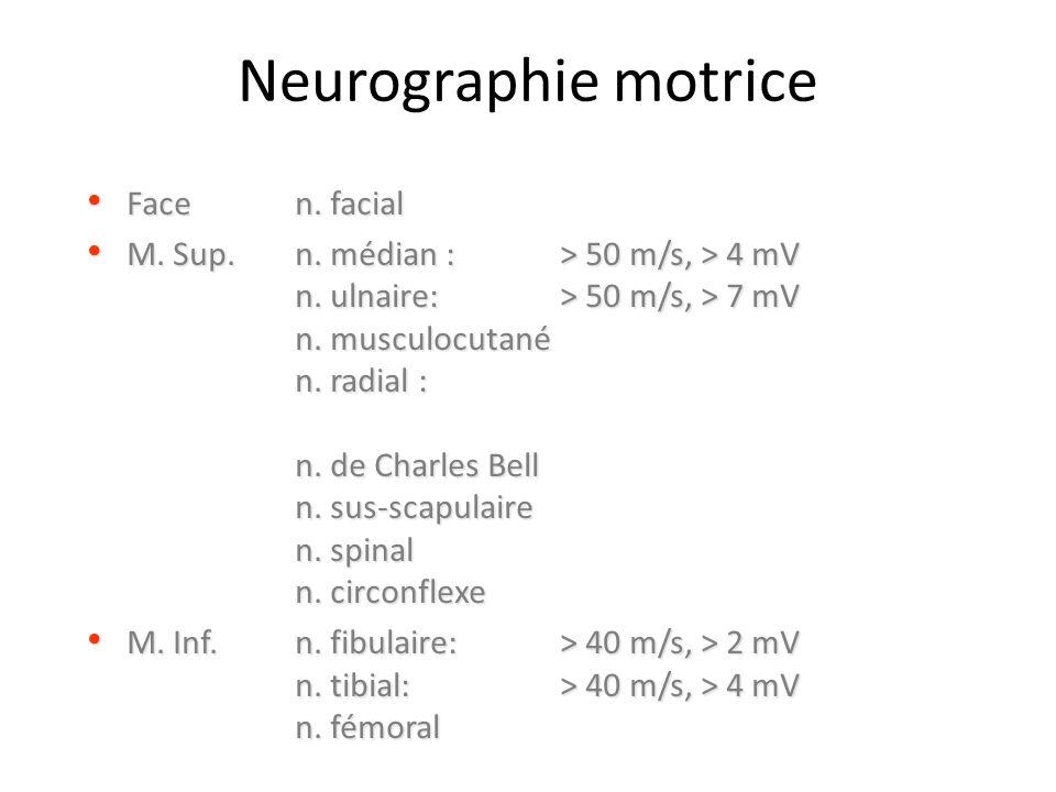 Neurographie motrice Face n. facial