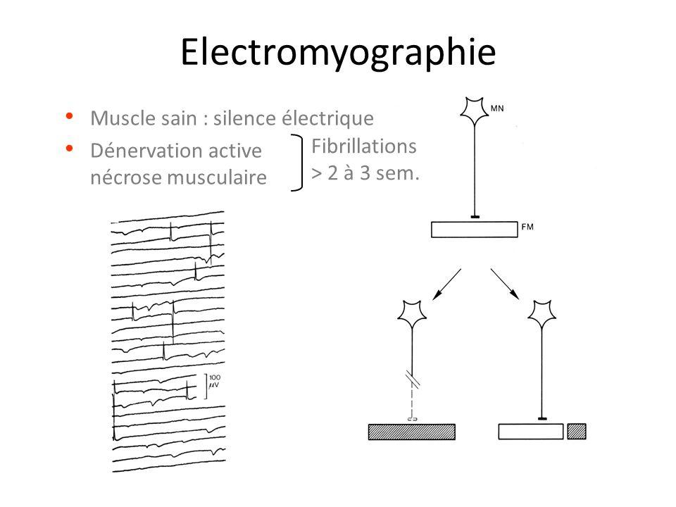 Electromyographie Muscle sain : silence électrique