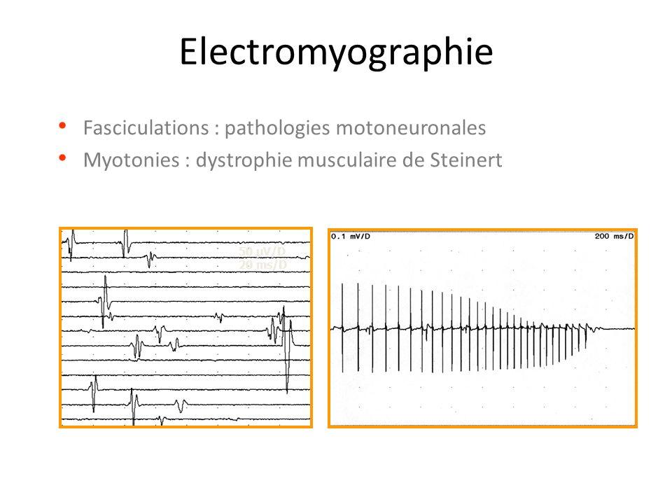 Electromyographie Fasciculations : pathologies motoneuronales
