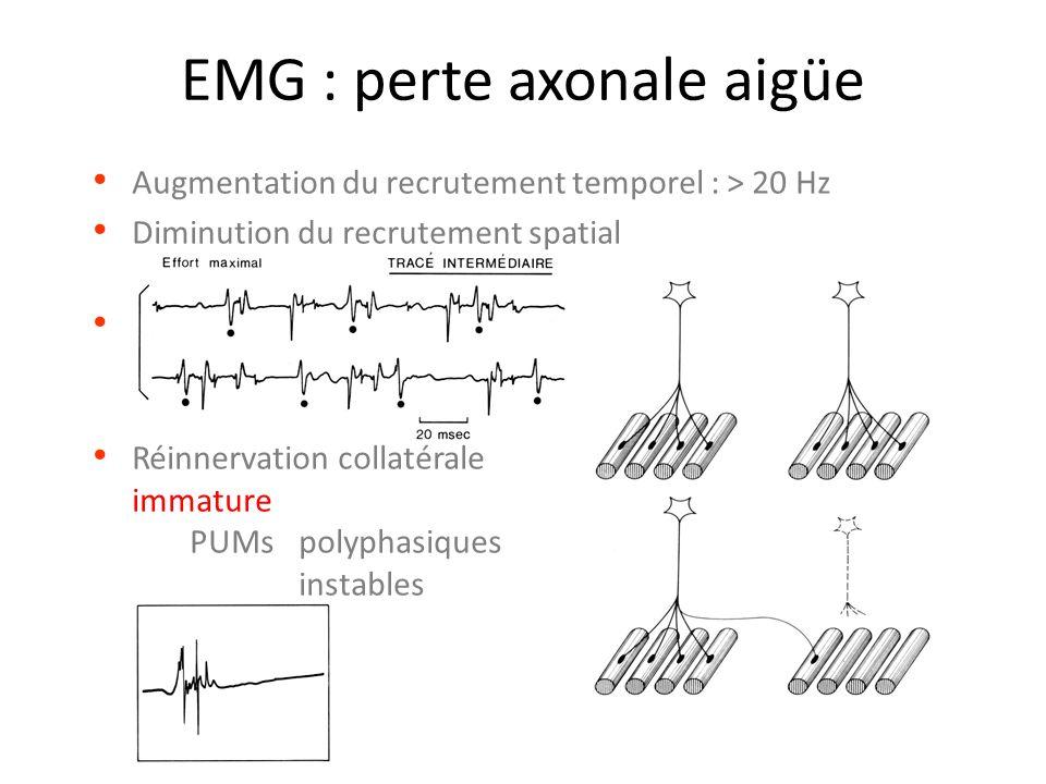EMG : perte axonale aigüe