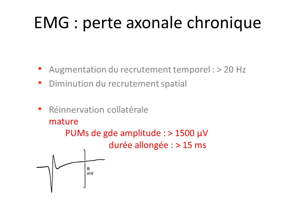 EMG : perte axonale chronique