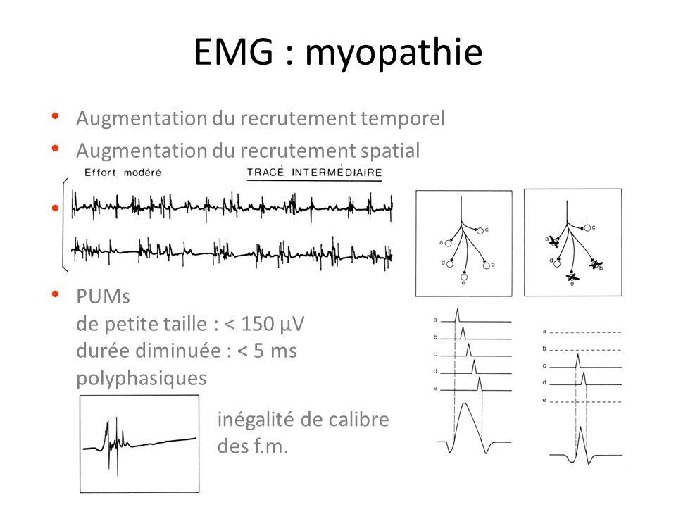 EMG : myopathie Augmentation du recrutement temporel