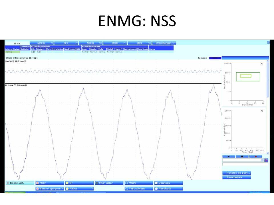 ENMG: NSS