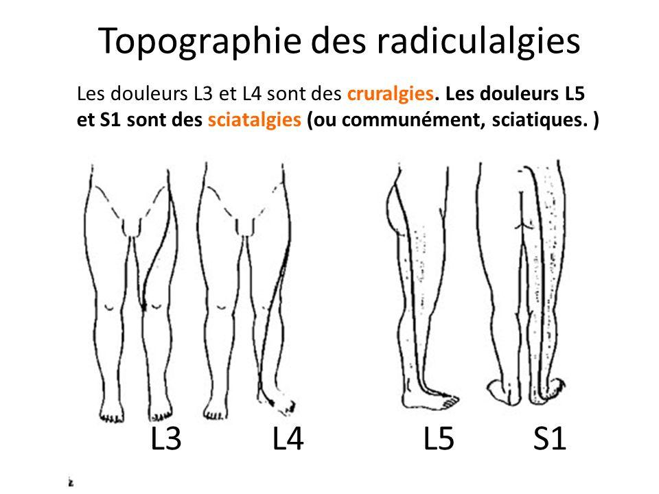 Topographie des radiculalgies