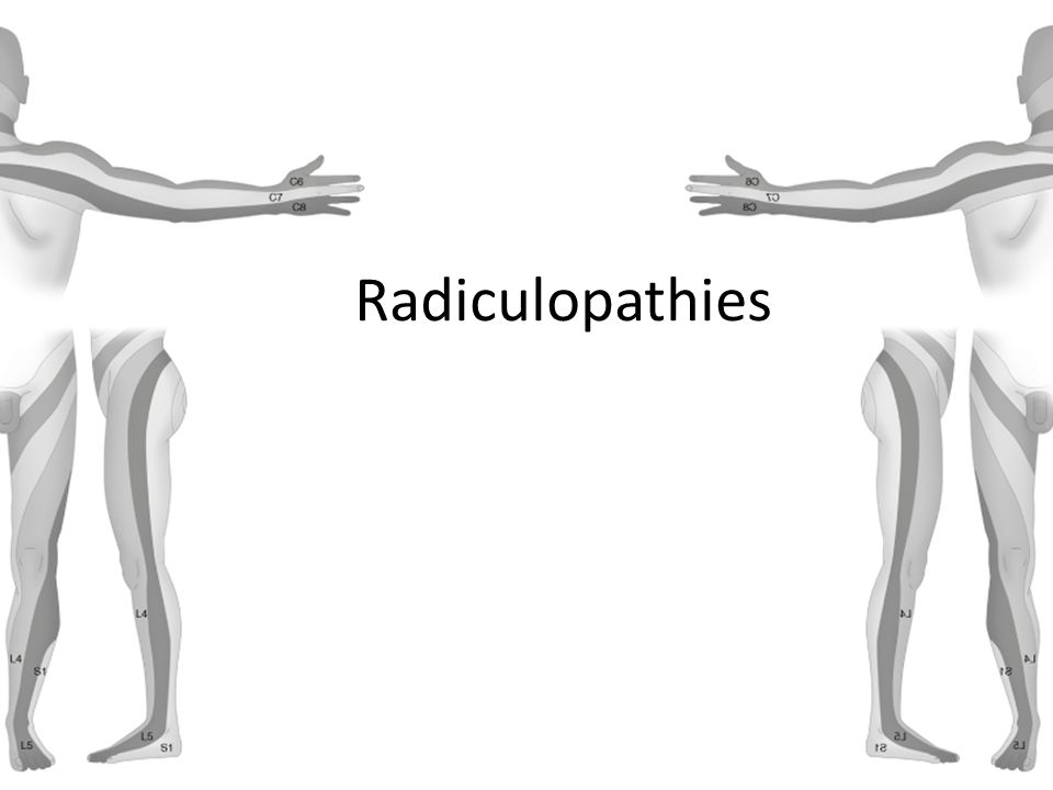 Radiculopathies