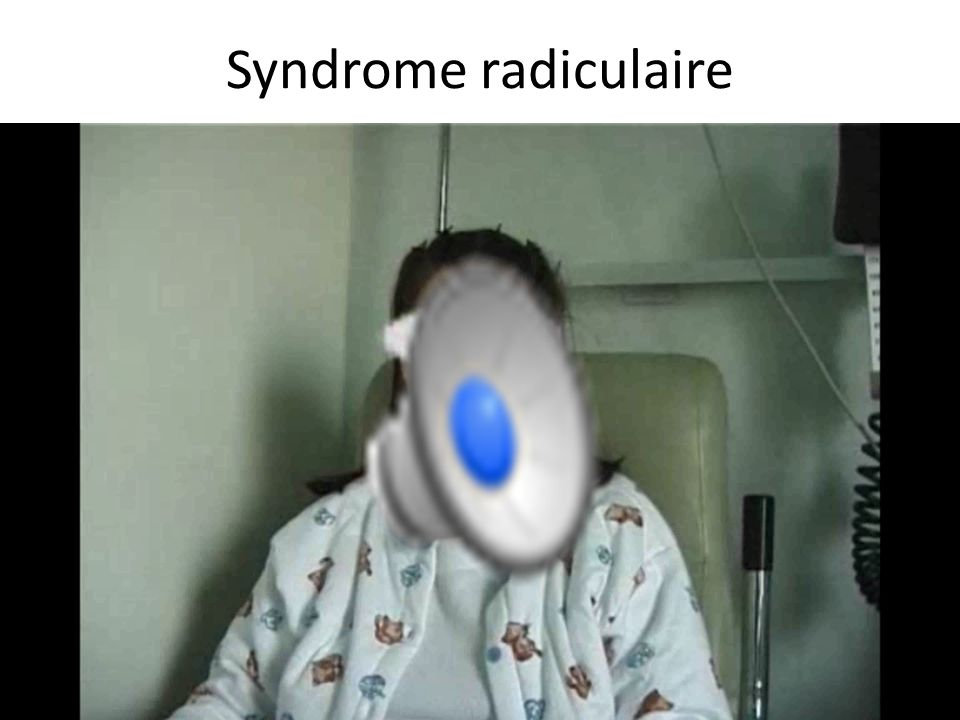 Syndrome radiculaire