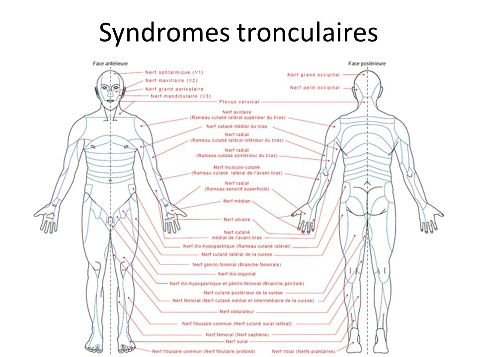 Syndromes tronculaires