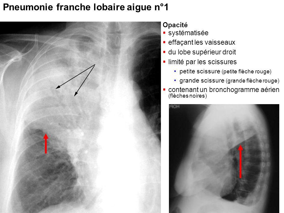 Pneumonie franche lobaire aigue n°1