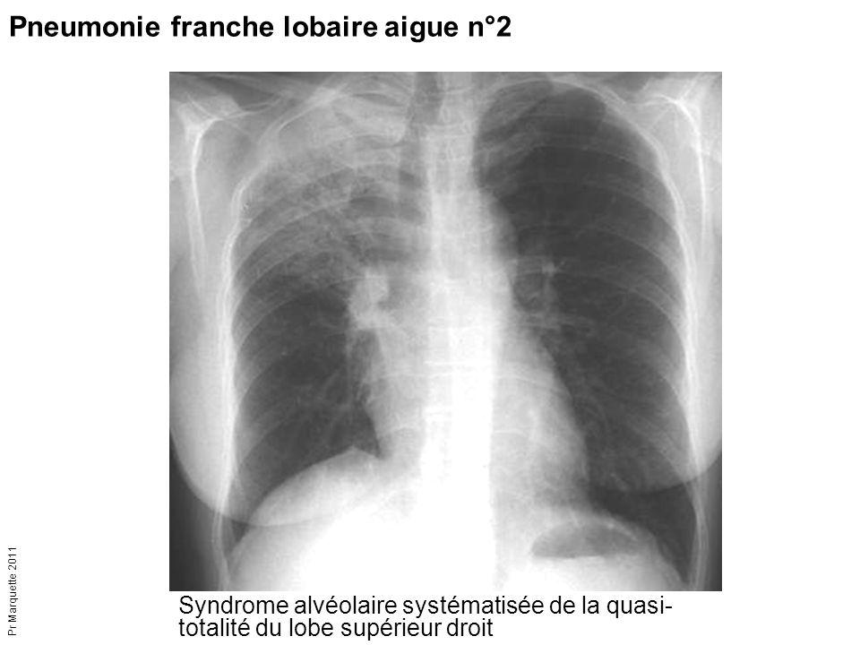 Pneumonie franche lobaire aigue n°2