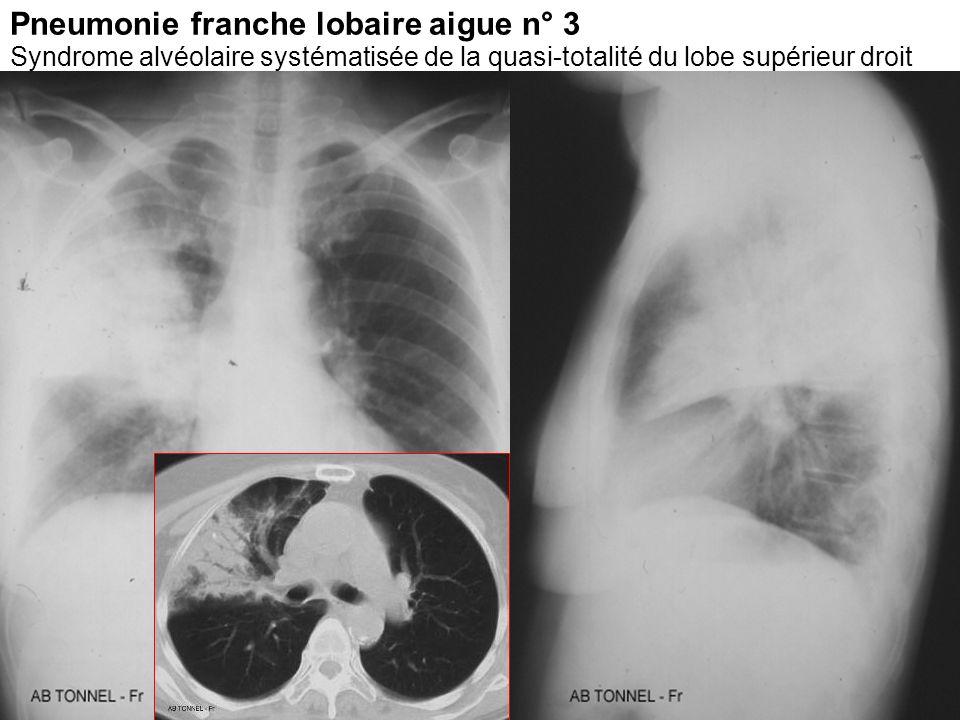 Pneumonie franche lobaire aigue n° 3