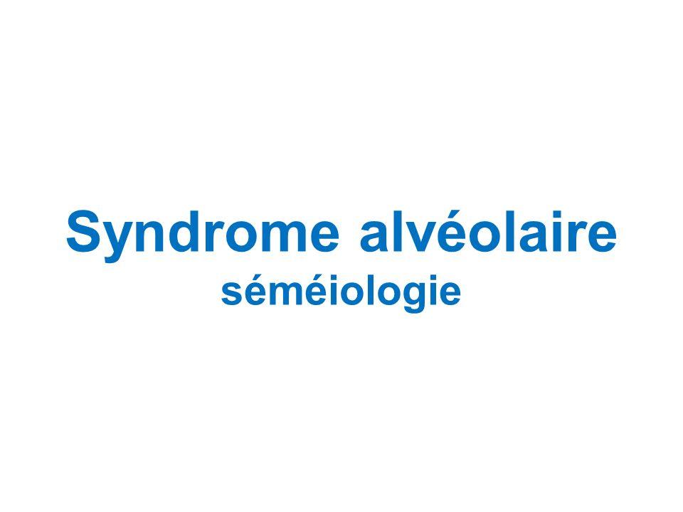 Syndrome alvéolaire séméiologie