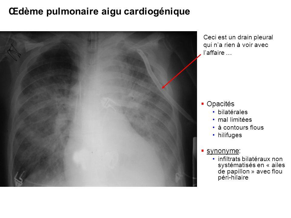 Œdème pulmonaire aigu cardiogénique