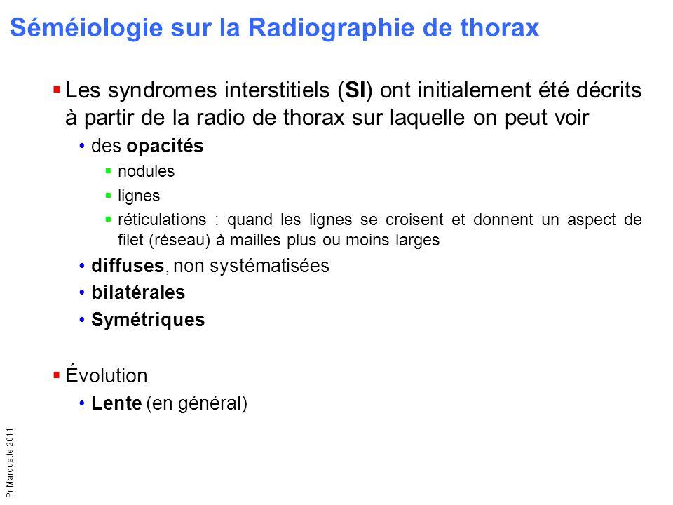 Séméiologie sur la Radiographie de thorax