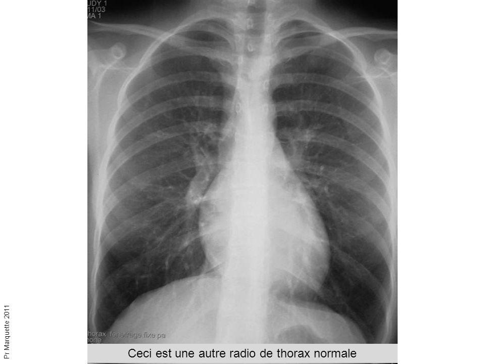 Ceci est une autre radio de thorax normale