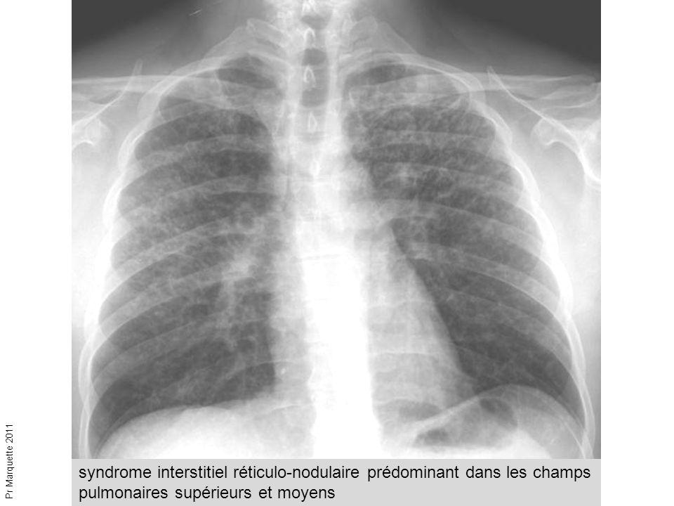 Pr Marquette 2011 syndrome interstitiel réticulo-nodulaire prédominant dans les champs pulmonaires supérieurs et moyens.