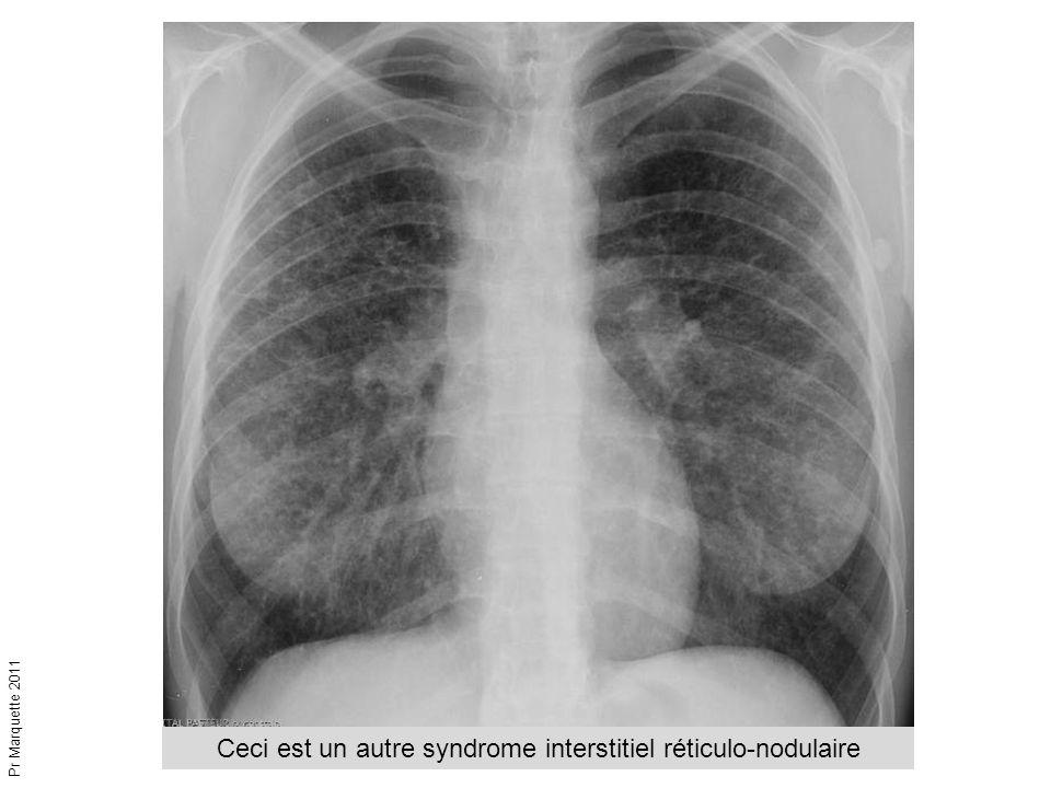 Ceci est un autre syndrome interstitiel réticulo-nodulaire