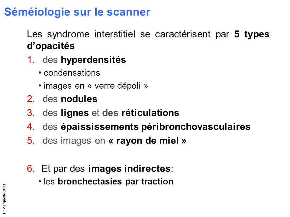 Séméiologie sur le scanner
