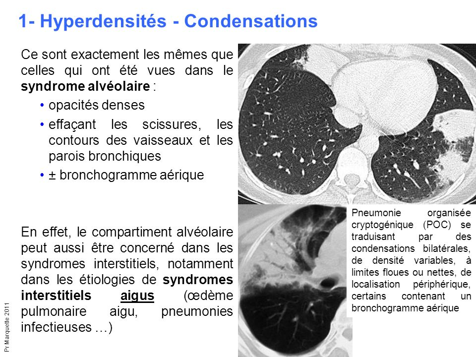 1- Hyperdensités - Condensations