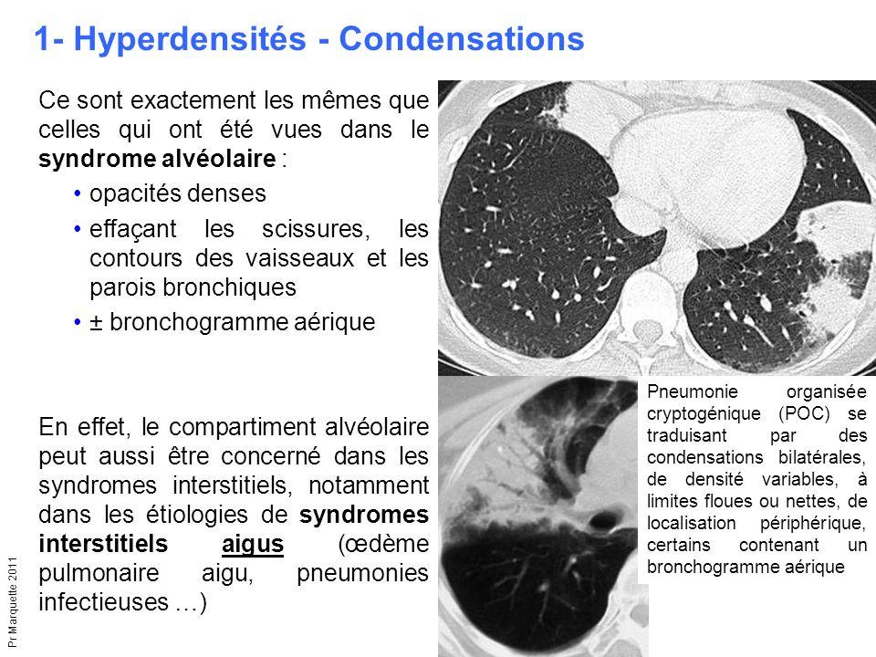 1- Hyperdensités - Condensations