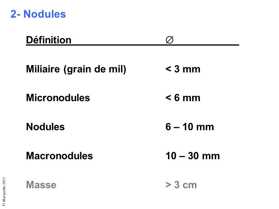 2- Nodules Définition  Miliaire (grain de mil) < 3 mm
