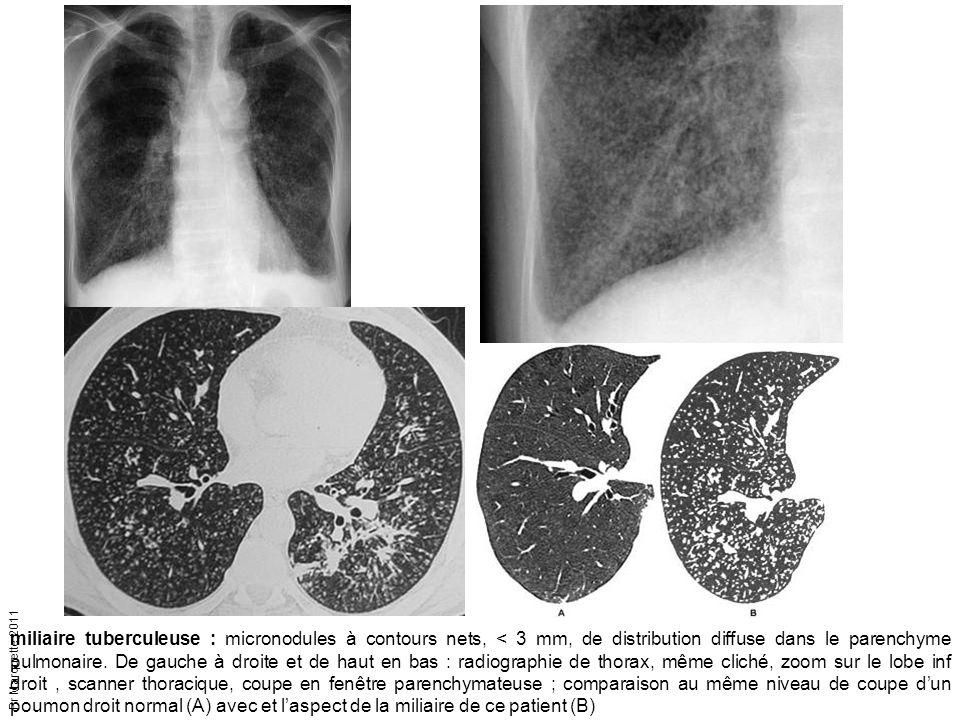 miliaire tuberculeuse : micronodules à contours nets, < 3 mm, de distribution diffuse dans le parenchyme pulmonaire.