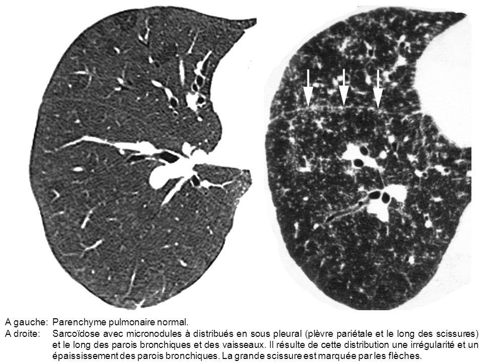 A gauche: Parenchyme pulmonaire normal.