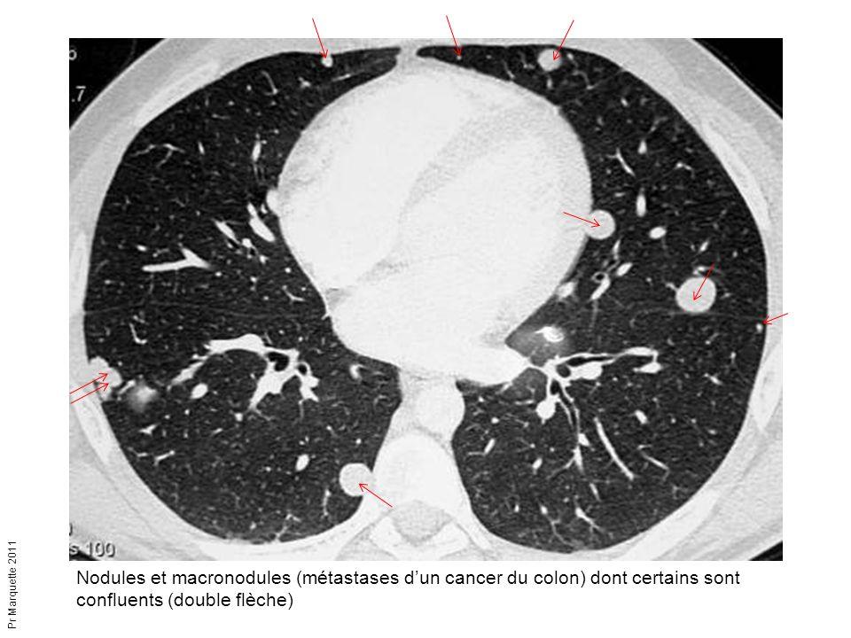 Nodules et macronodules (métastases d'un cancer du colon) dont certains sont confluents (double flèche)
