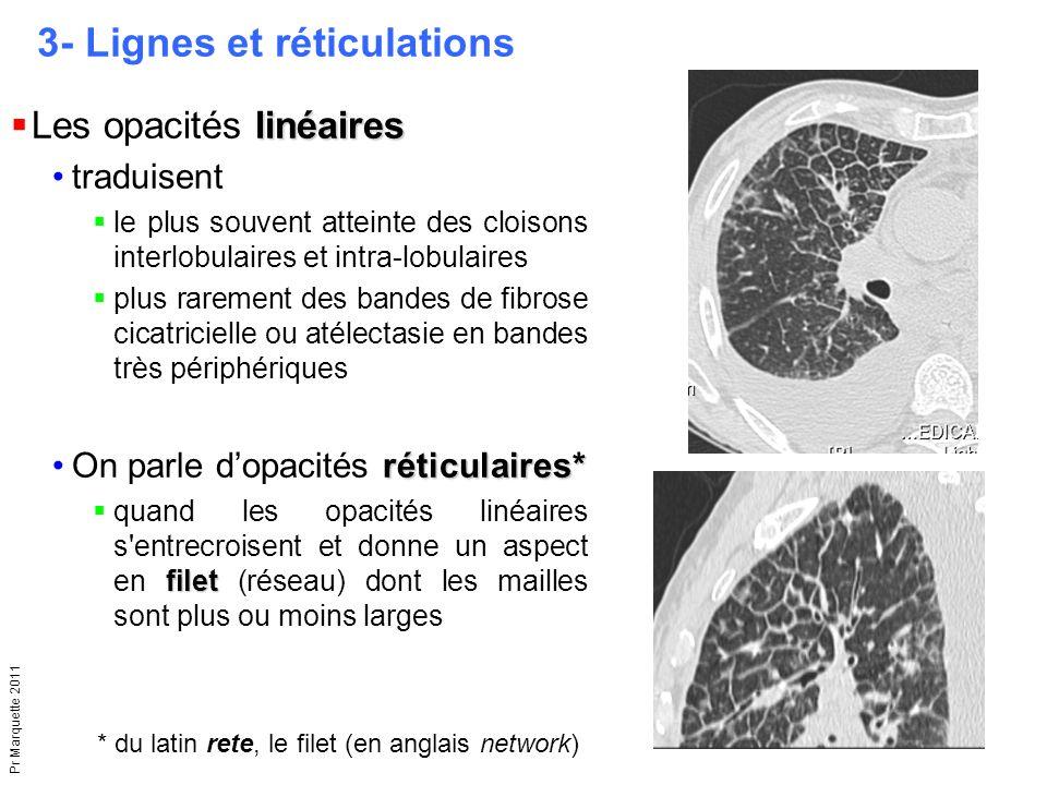 3- Lignes et réticulations