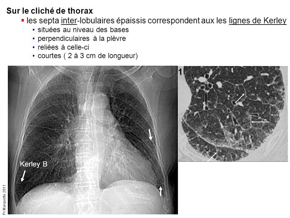 Sur le cliché de thorax les septa inter-lobulaires épaissis correspondent aux les lignes de Kerley.