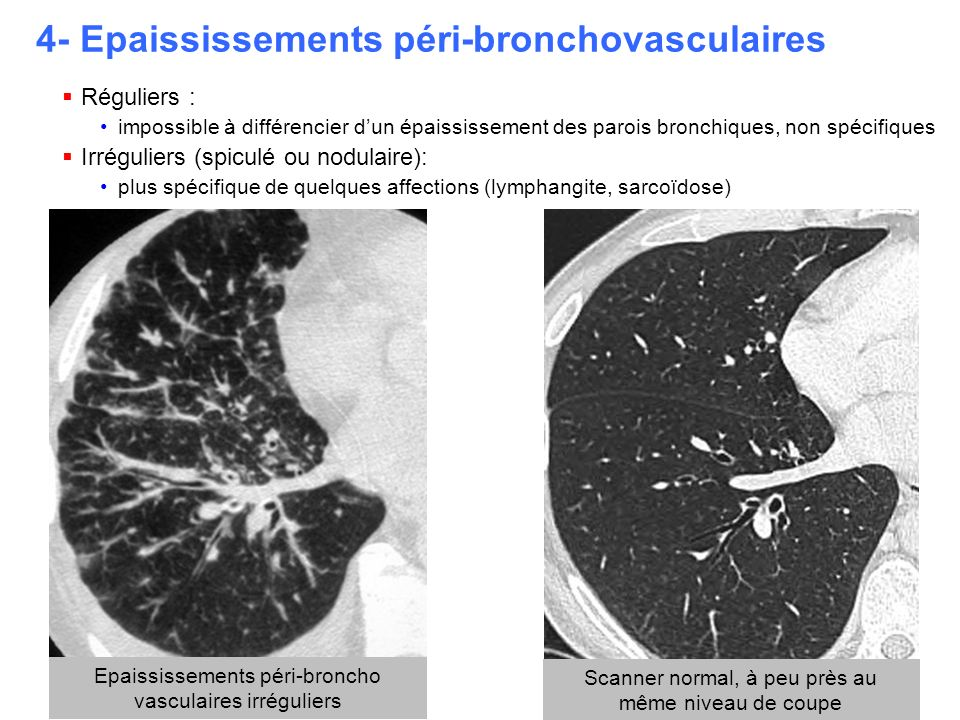 4- Epaississements péri-bronchovasculaires