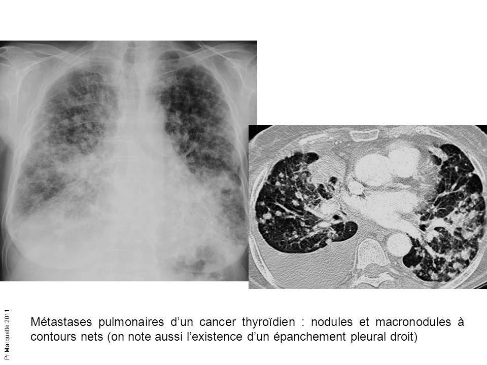 Métastases pulmonaires d'un cancer thyroïdien : nodules et macronodules à contours nets (on note aussi l'existence d'un épanchement pleural droit)