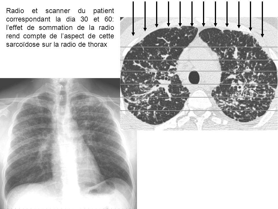 Radio et scanner du patient correspondant la dia 30 et 60: l'effet de sommation de la radio rend compte de l'aspect de cette sarcoïdose sur la radio de thorax