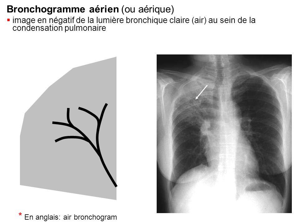 Bronchogramme aérien (ou aérique)