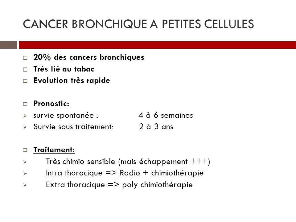 cancer pulmonaire à petites cellules