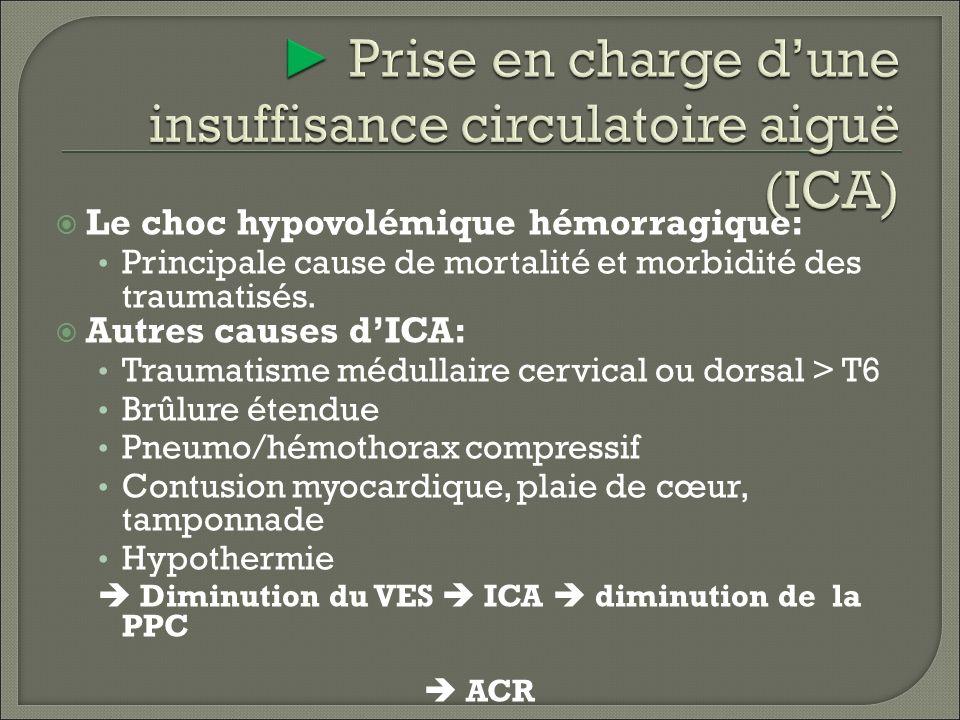 ► Prise en charge d'une insuffisance circulatoire aiguë (ICA)