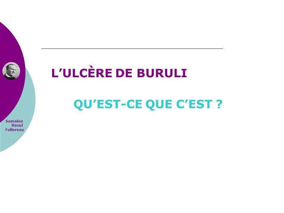 L'ULCÈRE DE BURULI QU'EST-CE QUE C'EST